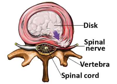 SPINAL CORD AND NERVE